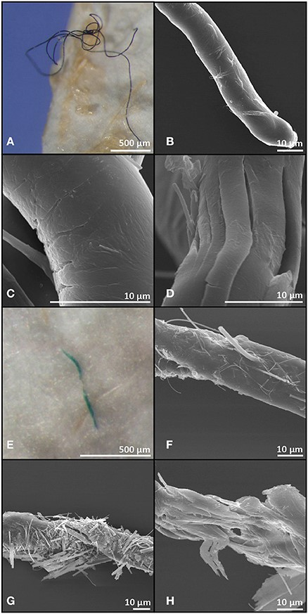 Microscopic images of microplastics found in the gut contents of deep sea fish. (Source: Frontiers in Marine Science journal, Frequency of Microplastics in Mesopelagic Fishes from the Northwest Atlantic.)